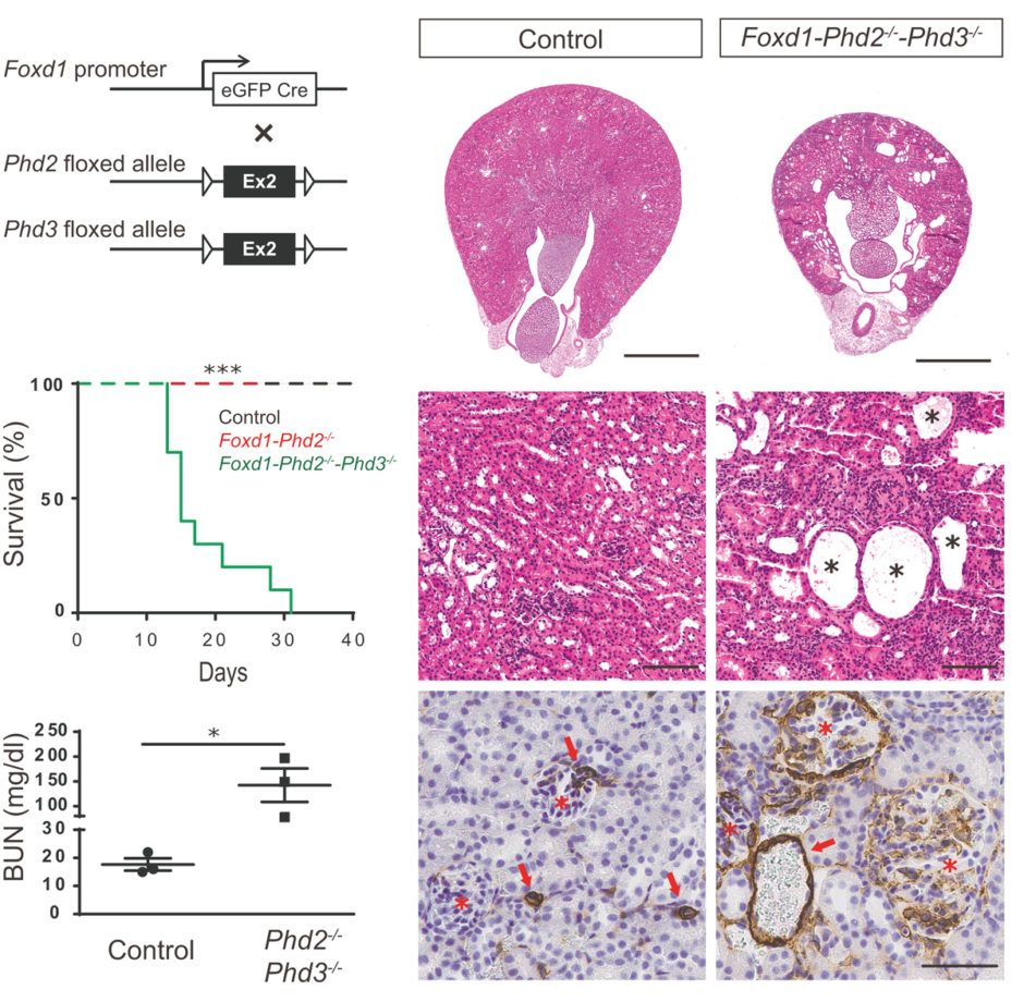 Kobayashi et al., Kidney International 2017