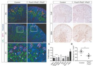 HIF-prolyl hydroxylases in renal development